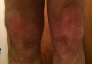 My knee December 19, 2013